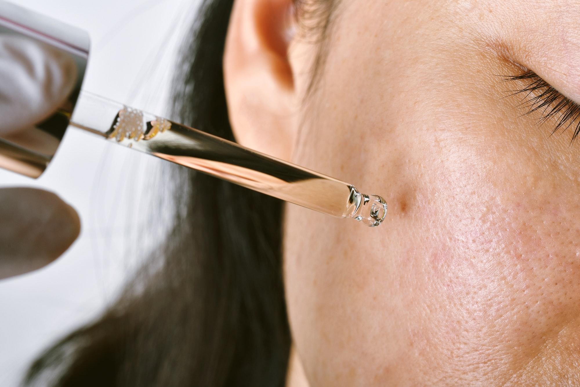 6 Kandungan dalam Skincare yang Bisa Mengatasi Bekas Jerawat